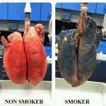 Why should I consider to quit smoking? ER24 provides a few answers