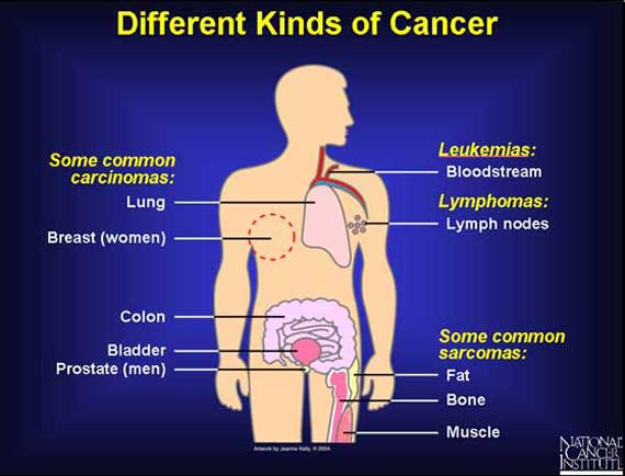 different types of cancer