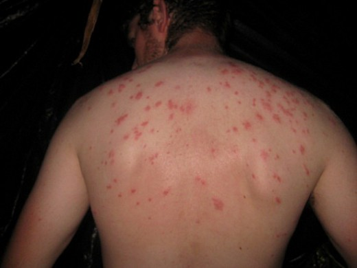 symptoms_of_typhoid_fever