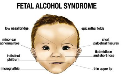fetal alchol syndrome essay View essay - fetal alcohol syndrome essay from nurs 133 at texas brownsville fetal alcohol syndrome fetal alcohol syndrome fetal alcohol syndrome/fetal alcohol effects is an issue running.